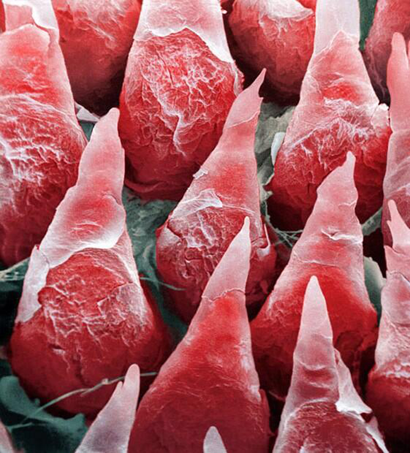 A microscopic image of a human tongue